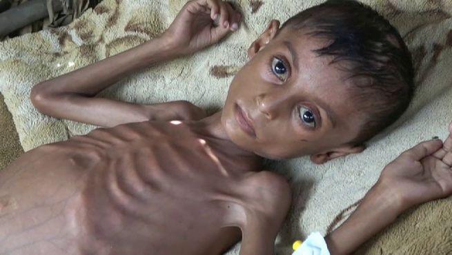 El riesgo de una hambruna vuelve al Yemen, según la ONU
