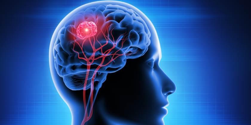 La curación de lesiones cerebrales podría relacionarse con un tipo de cáncer