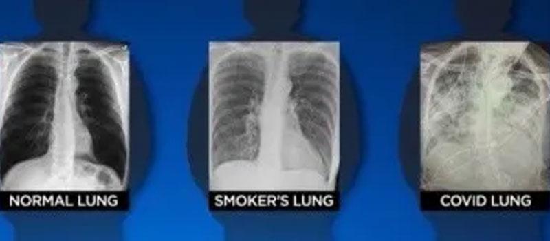 COVID-19 daña más a los pulmones que el cigarro: experta