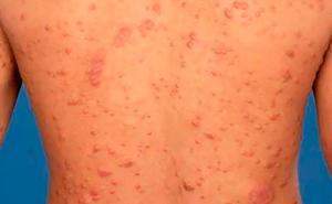Día Mundial de la Lepra, enfermedad que afecta al 5% de la población