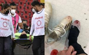 Las lesiones que dejó el Preolímpico a futbolistas mexicanos