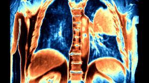 Inmunoterapia es una esperanza de vida para pacientes con cáncer de pulmón