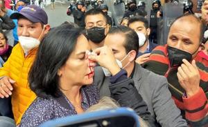 ¿Quién es Lía Limón la alcaldesa agredida por policías?