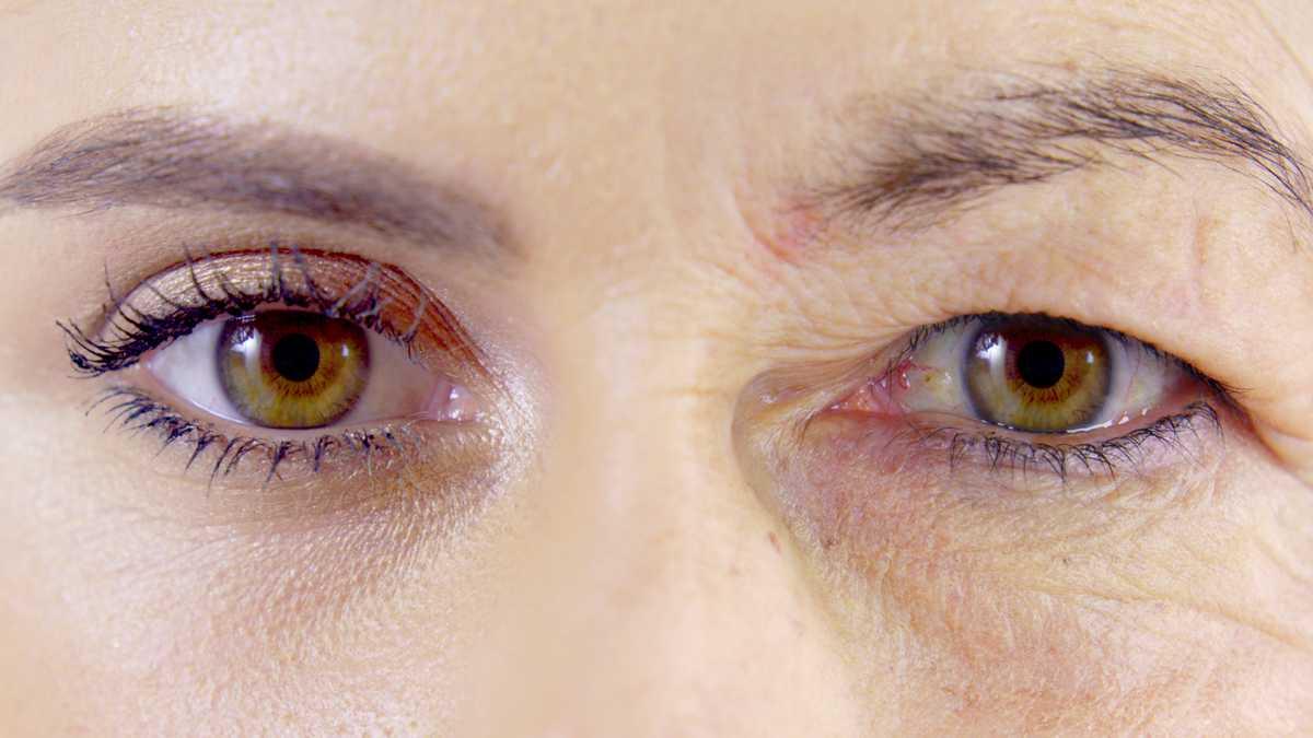 4 ejercicios para levantar los párpados caídos y agrandar los ojos