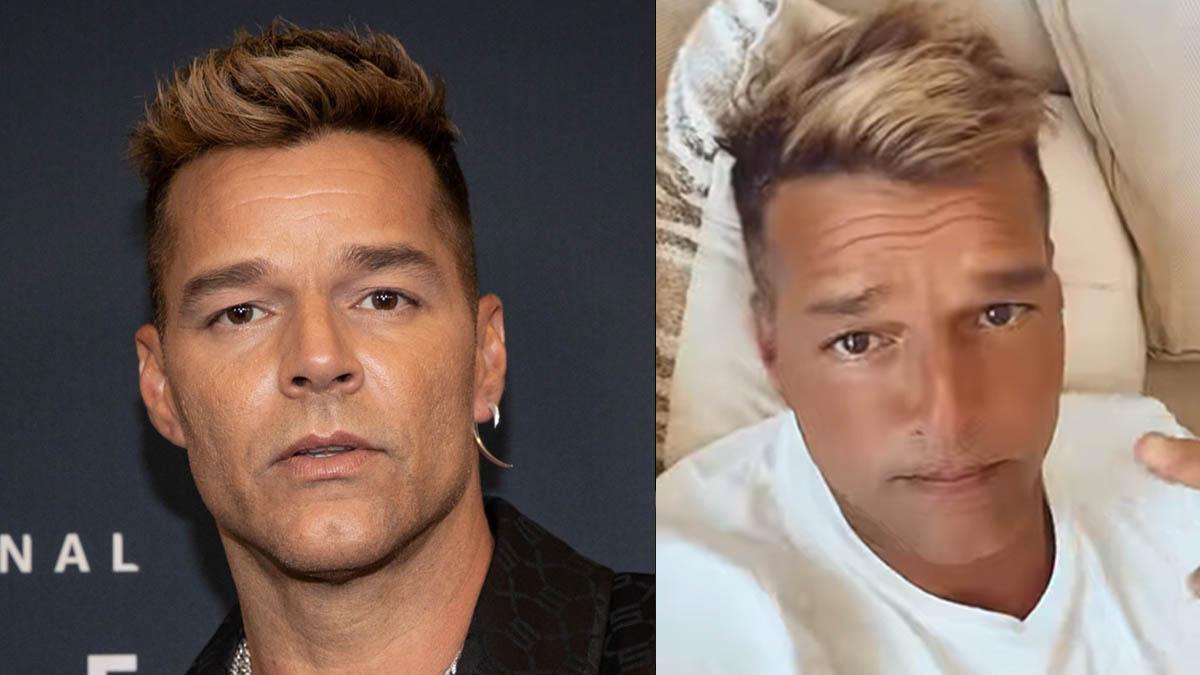 Ricky Martin responde tras polémica por su cambio de cara; no fue cirugía