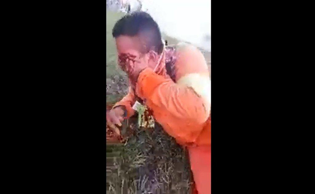 '¡Voy a perder mi ojo!'; video muestra a herido de Dos Bocas